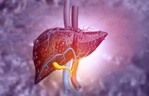 Sağlıksız bir karaciğeri gösteren bir illüstrasyon.