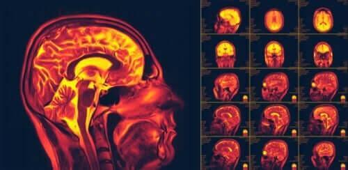 Beyinde Nöroplastisite Nedir?