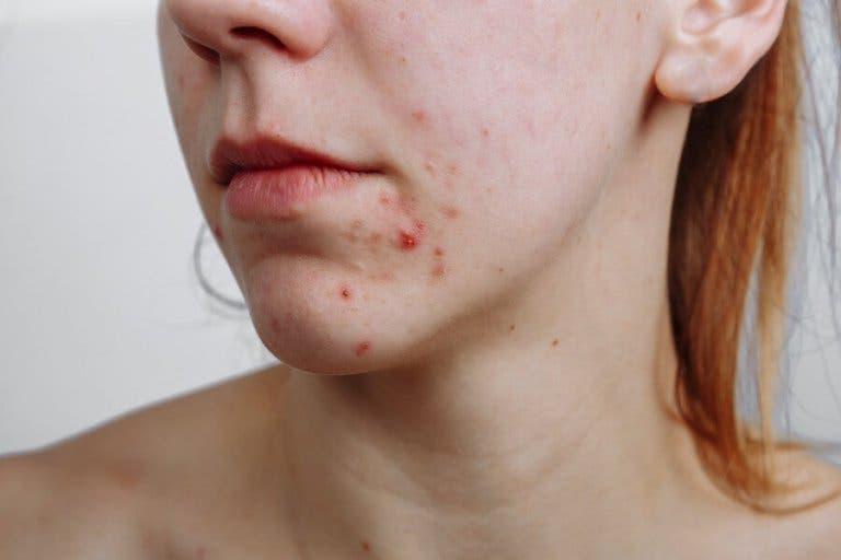 Akne tedavileri