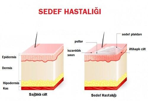 deri tabakaları