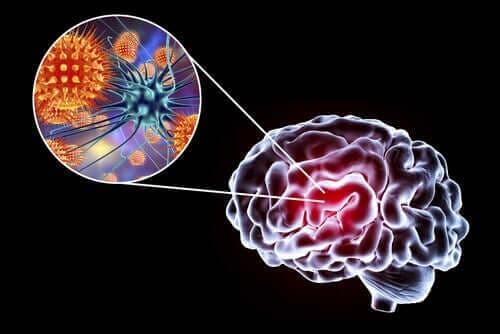 Ensefalit: Semptomları, Nedenleri ve Tedavisi
