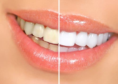 Diş beyazlatma işleminin sonuçlarını gösteren bir fotoğraf.