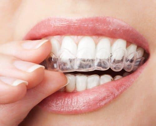 Bir diş tedavisi deneyen bir kadın.
