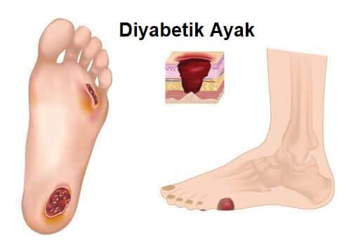 Diyabetik ayak, özel bakım gerektirir