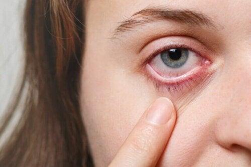 Göz Enfeksiyonları İçin 5 Etkili Çözüm