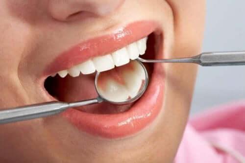 Diş muayenesi olan bir kadın.