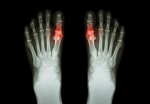 Artrit bulunduğuna işaret eden bir röntgen.