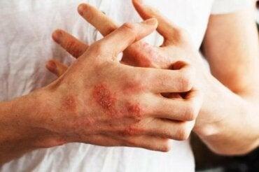 Sedef Hastalığı Semptomlarını Kontrol Etmeye Yardımcı Olabilecek Yiyecekler