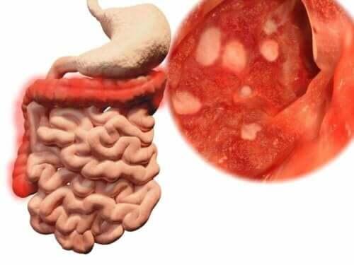 Bağırsak bakterilerini gösteren bir illüstrasyon.