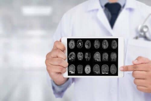 Beyin görüntüleri gösteren bir doktor.