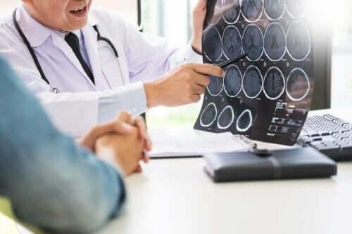 Doktor hastasına beyin tomografisini gösterirken