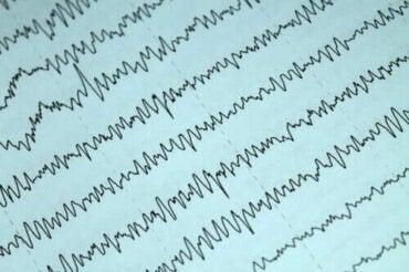 Emzirme Döneminde Epilepsi Nasıl İdare Edilir