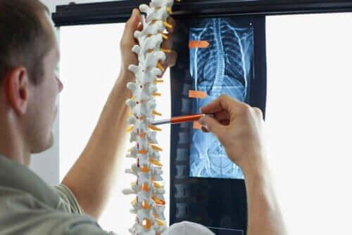 omurilik röntgen inceleyen doktor
