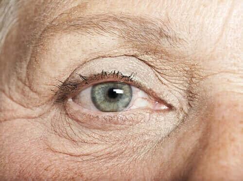 Göz çilleri olan bir kişi.