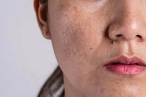 Yüzünde hamilelik lekeleri olan bir kadın.