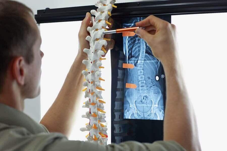 Kemik Metastazı: Semptomları ve Tedavisi
