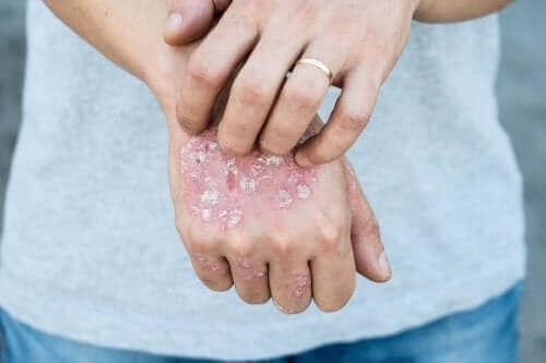Ellerinde sedef hastalığı semptomları olan bir kişi.