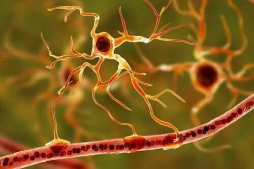 Epilepsi hastası olan bir kişinin sinir sisteminin temsili.