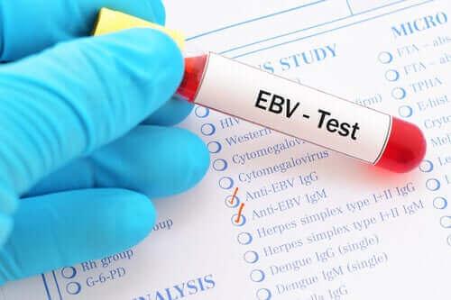 EBV kan testi