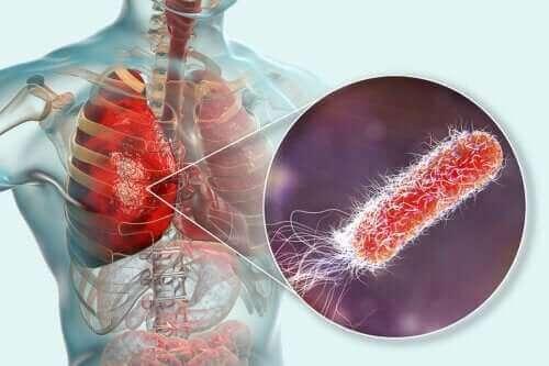Akciğerlerde Bakteri Var Mıdır?