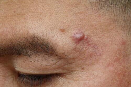 Epidermoid Kistler: Nedenleri ve Olası Tedavileri