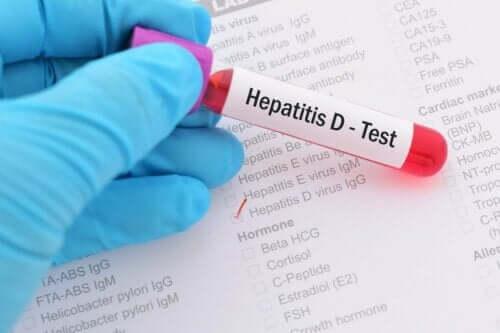 hepatit d testi