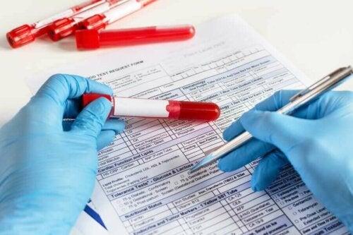 Kan testlerini analiz eden bir doktor.