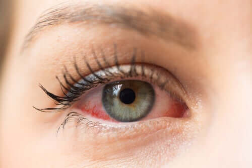 kırmızı göz