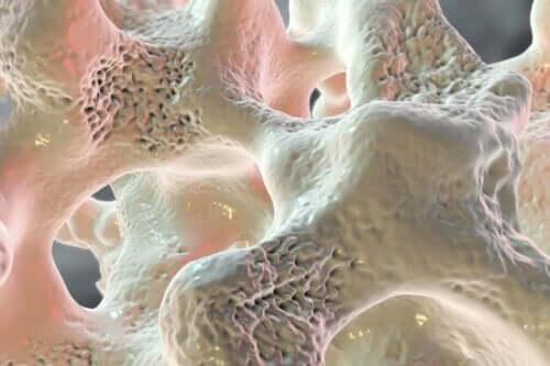 osteoporoz görülen bir kemik
