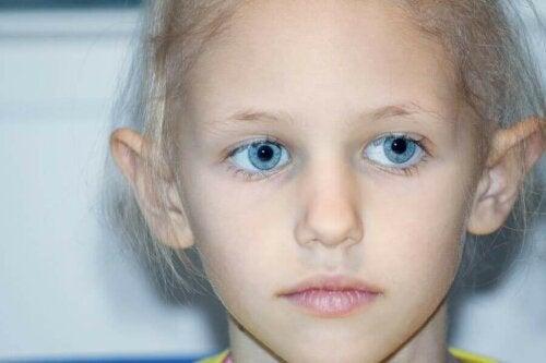 retinoblastom hastası bir çocuk