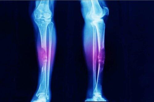 röntgen bacaklar
