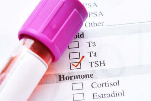 Tiroid Uyarıcı Hormon Düşüklüğünün Nedenleri