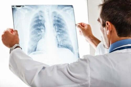 Akciğer filmini inceleyen doktor
