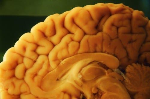 Üzerinde otopsi yapılmakta olan bir beyin.