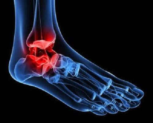 Bilek ağrısı yaşayan bir kişinin ayağının çizimi.