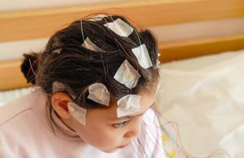 Kafasında elektrotlar olan bir çocuk.