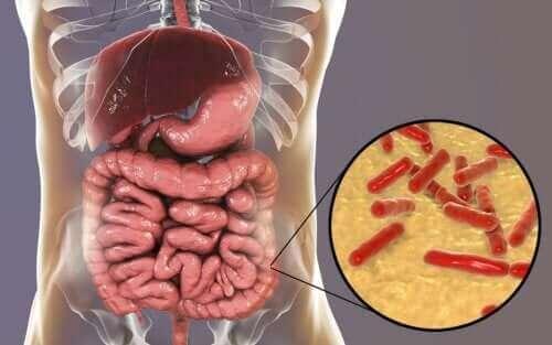 Hasarlı Bağırsak Mikrobiyotası Nasıl Anlaşılır
