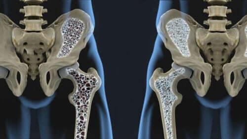 Kemik yoğunluğu farkını anlatan görsel