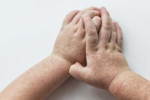 Kurdeşen döken bir kişinin elleri.