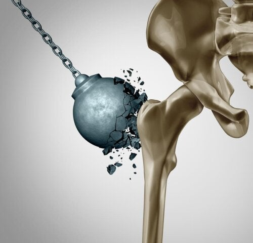 Menopozdan Sonra Osteoporozun Hasarını Azaltmak