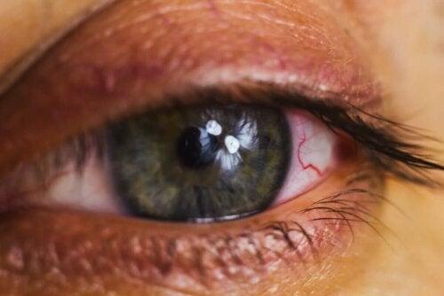 sulu göz