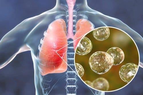 Bir akciğer enfeksiyonunu gösteren bir çizim.