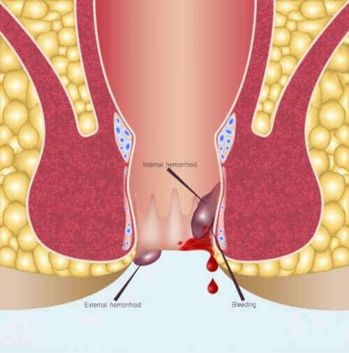 Anoskopi Prosedürü: Genel Bir Bakış