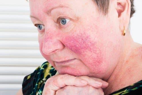 gül hastalığı yüz kadın