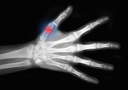 kırık-röntgen