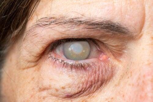 Bir gözü kör olan bir kadın.