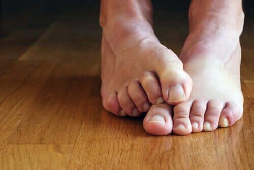 siyah ayak tırnakları