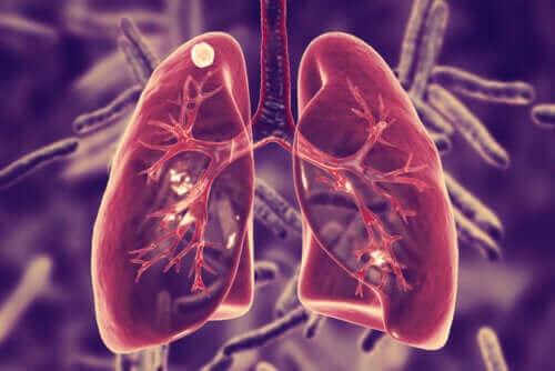 Akciğer Tüberkülozu Nedir ve Belirtileri Nelerdir?