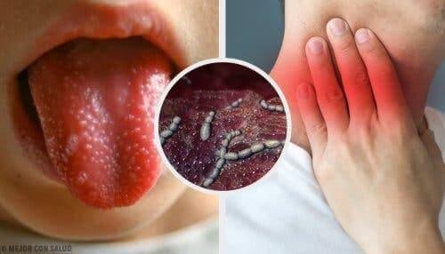dil döküntü boyun çocuklarda kızıl hastalığı