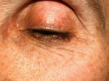Göz Kapaklarında Renkli Lekeler: Neden Oluşurlar?